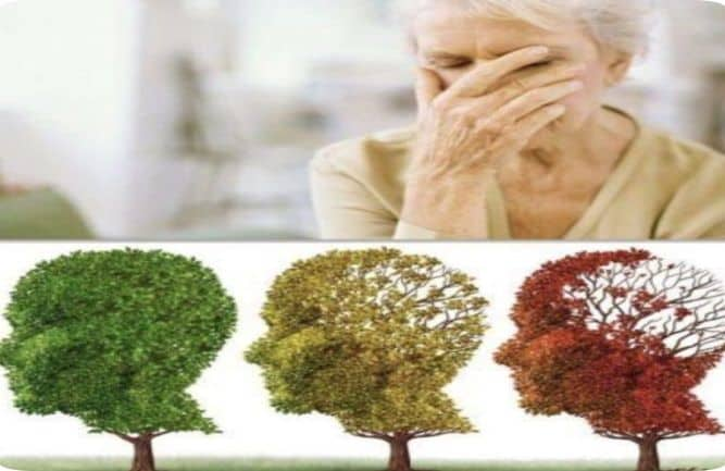 evolución del alzheimer en diez años